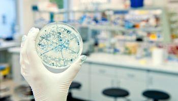 Curso Gratuito Curso Superior en Análisis de Muestras en el Laboratorio de Microbiología (Reconocimiento de Oficialidad por la Administración Pública – ESSSCAN)