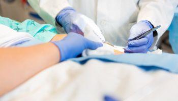Curso Gratuito Especialista en Donación y Trasplante