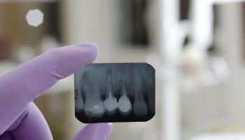 Curso Gratuito Experto en Gestión de Clínicas Dentales + Técnico Profesional en Dirección y Gestión de PYMES (Doble Titulación + 20 Créditos tradicionales LRU + Regalo: Licencia Educativa de Software para la Gestión de Clínicas Dentales)