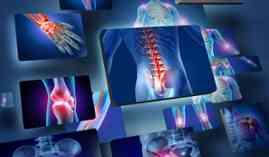 Curso Gratuito Máster en Imagen para el Diagnóstico + Titulación Universitaria en Radiología