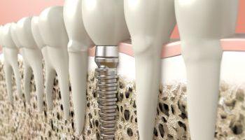 Curso Gratuito Postgrado en Endodoncia
